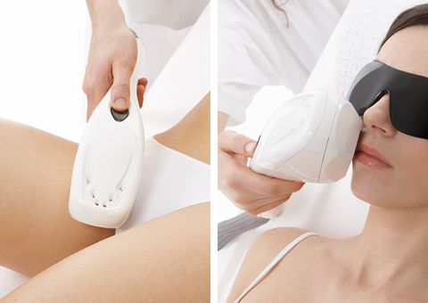 How to perform an IPL Treatment