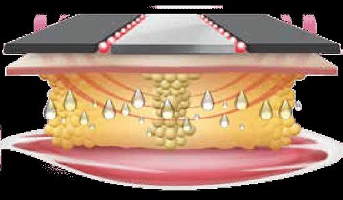 Shape Up System - Electrolipolysis Concept