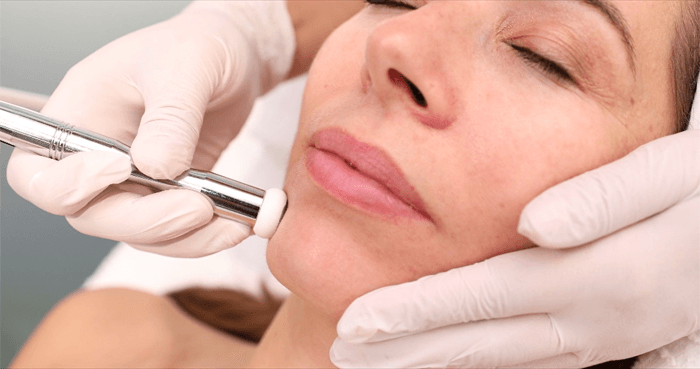 Face Lab Microdermabration